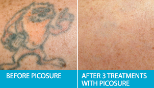 JHow Does Laser Tattoo Removal Work? Before After Pics