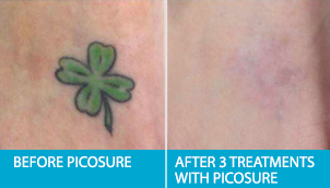 Edmonton Laser Tattoo Removal Before After Pictures