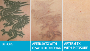 Laser Tattoo Removal Edmonton Picosure Treatments After 6 Sessions